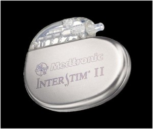 photo-interstim-ii